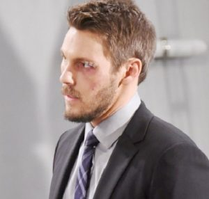 B&B Liam Black Eye