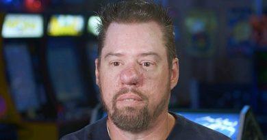 Dr. Pimple Popper: Stephen